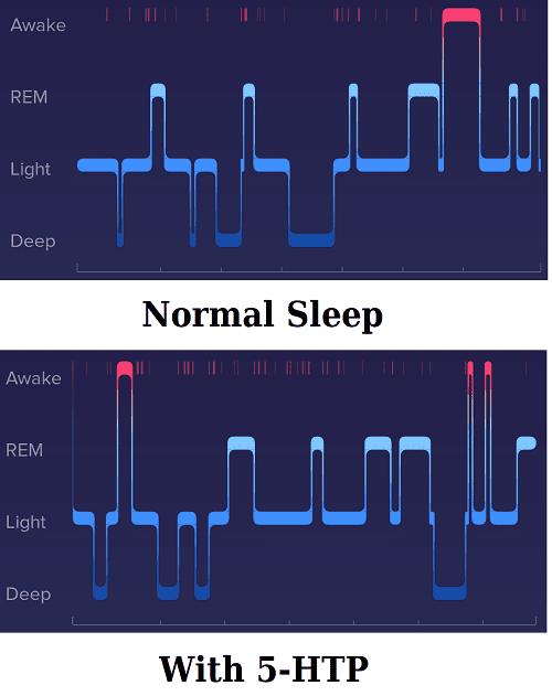 5-HTP Effect on REM